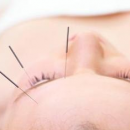 头痛该如何有效缓解 针灸疗法治疗头痛
