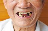 牙口不好的老人 推荐食用以下食物