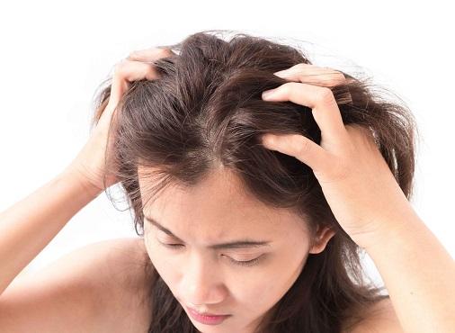 头皮痒怎么办 选择适合的洗发水能改善这个问题